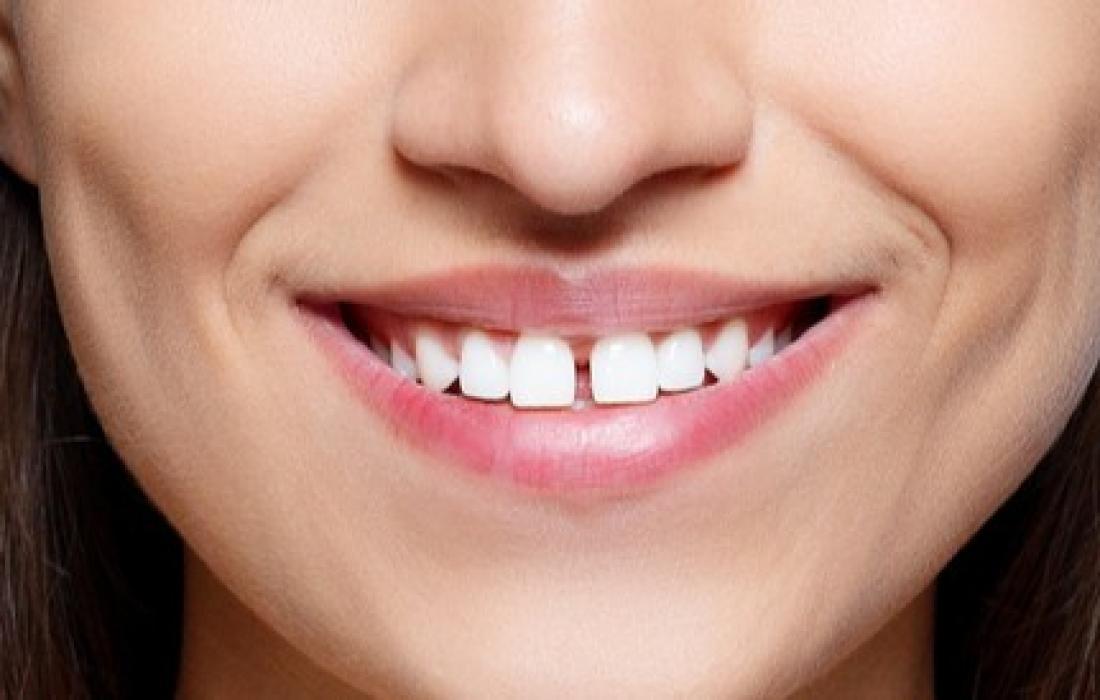 فراغات الأسنان.jpg