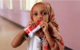 فتاة يمنية تخسر عشرات الكيلوغرامات بسبب سوء التغذية المتفشي في البلاد