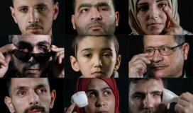 فقئ عيون الفلسطينيين بالرصاص.jpg